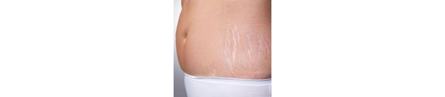 Anti-Stretch Marks - Cosmetics in Morocco